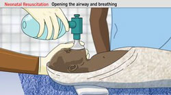 Neonatal Resuscitation - Skilled Health Workers